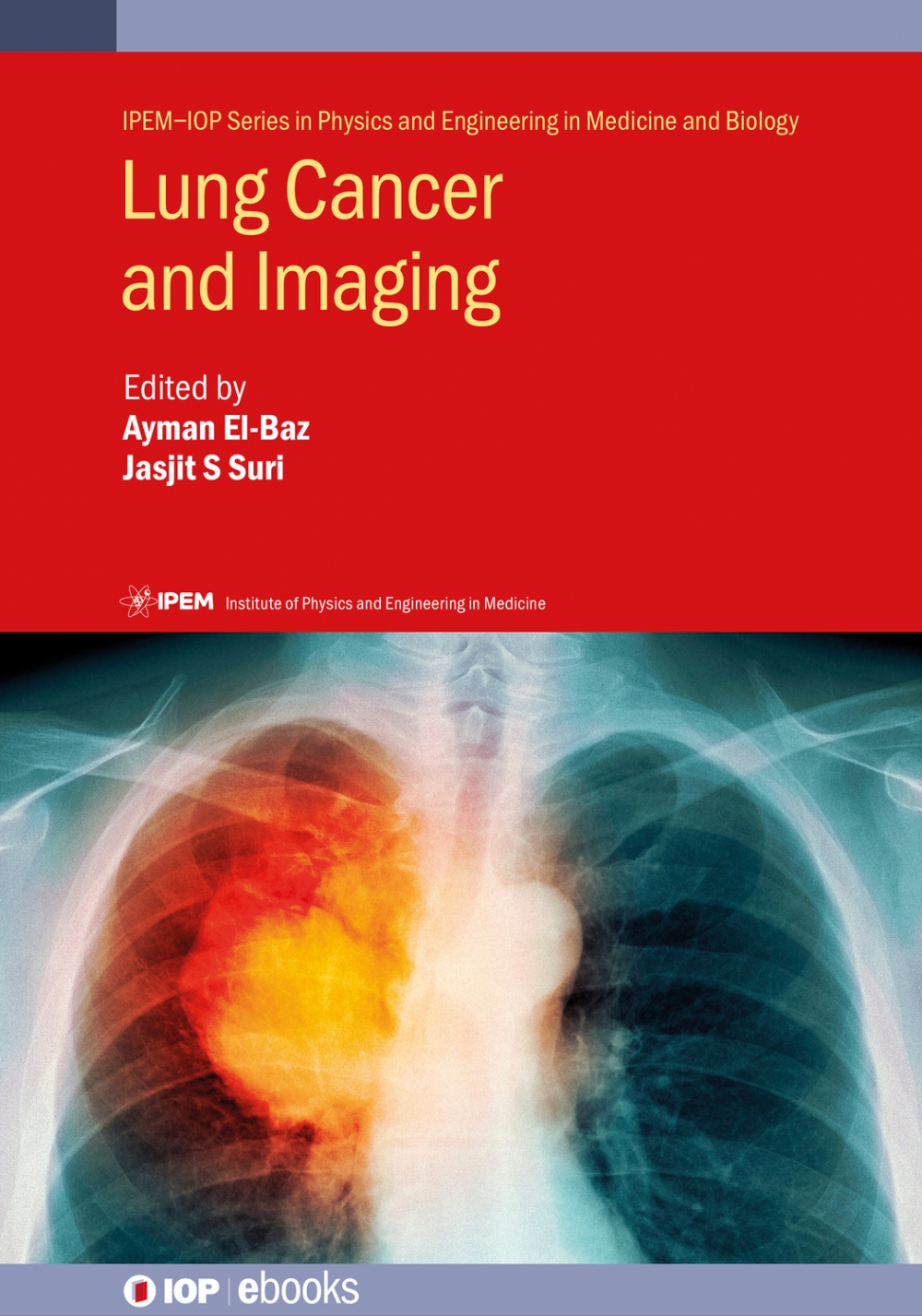 Jacket Image For: Lung Cancer and Imaging